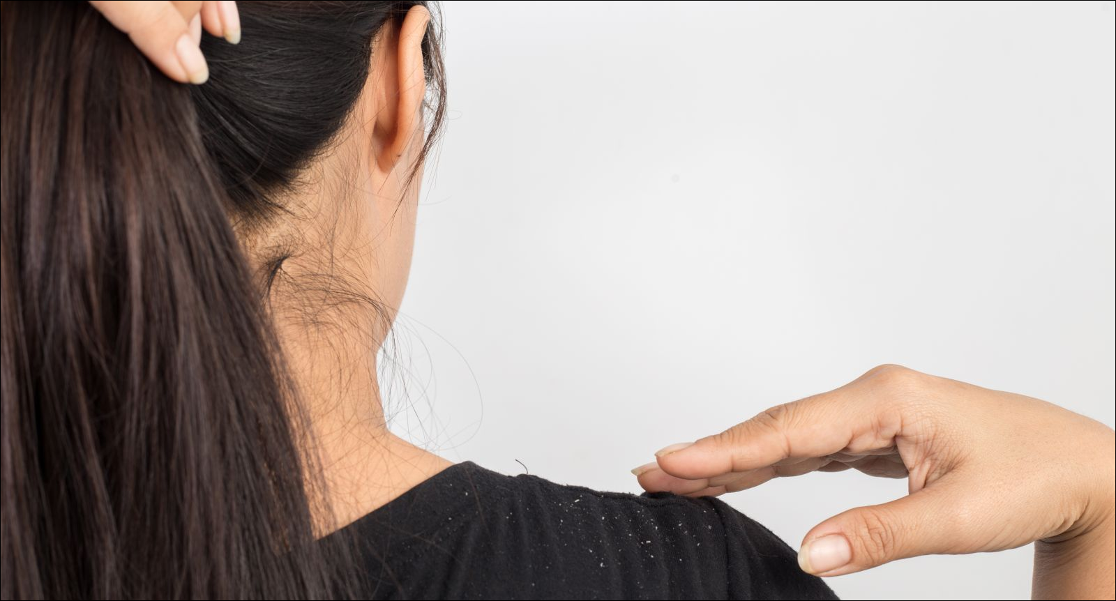 women with dandruff on her hair and shoulder