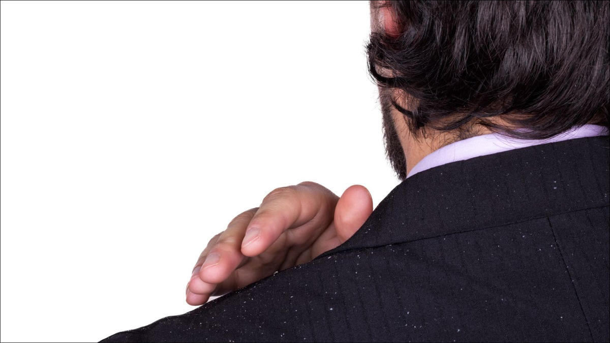 Man's shoulder in a jacket with dandruff.