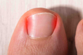 How to Fix (and Prevent) an Ingrown Toenail