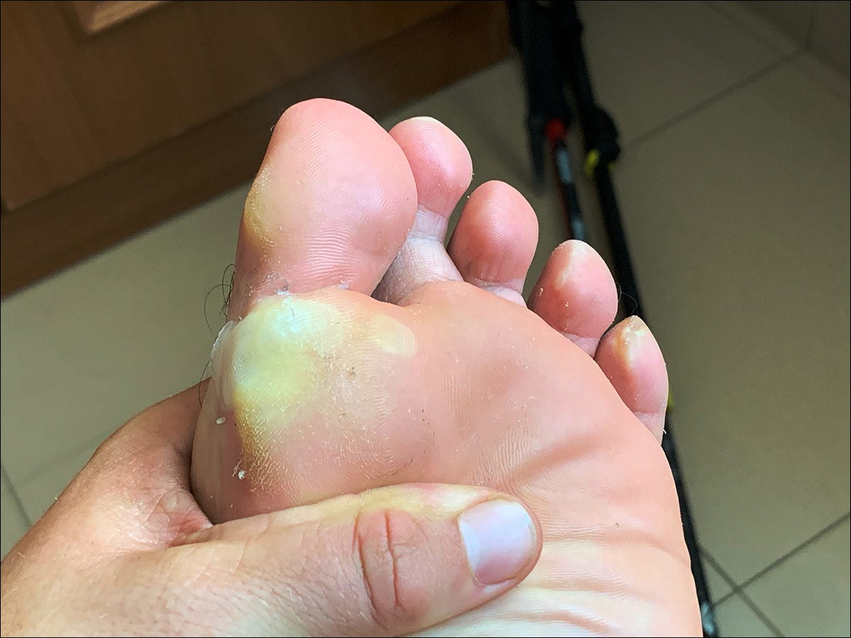The bottom of a man's foot with several blisters around the big toe.