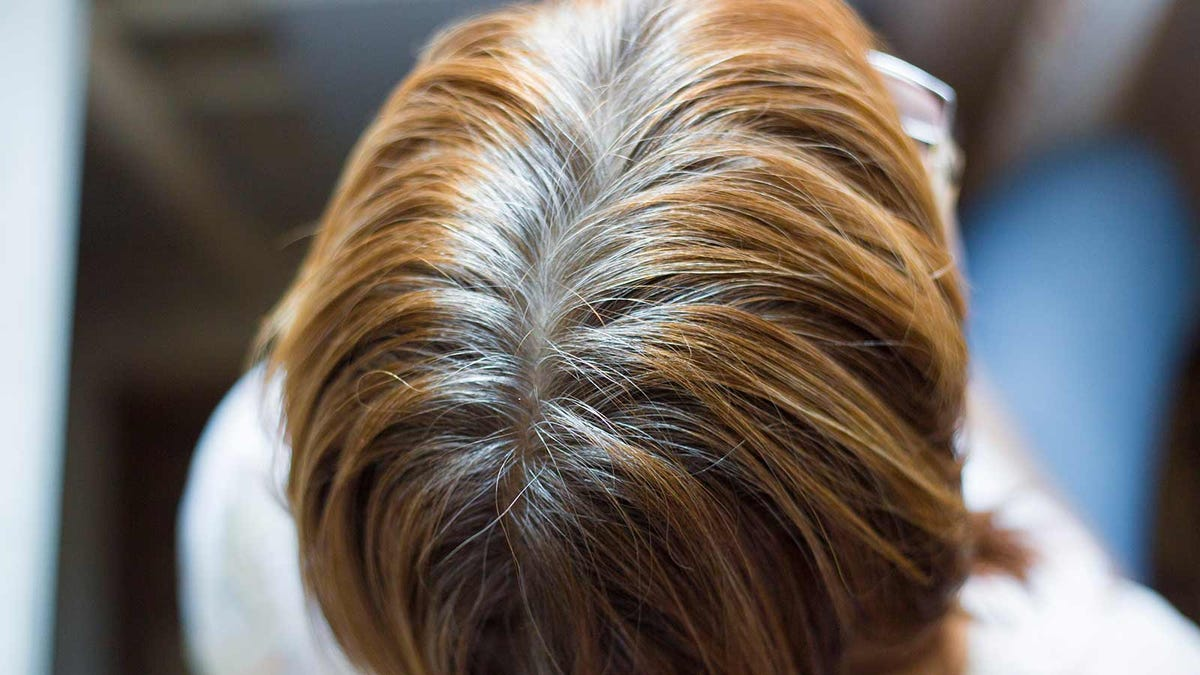 Gray hair roots on a woman's head.