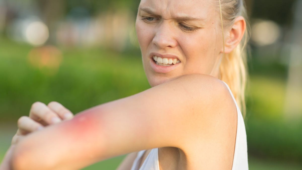 A woman looking at a wasp sting on her arm.