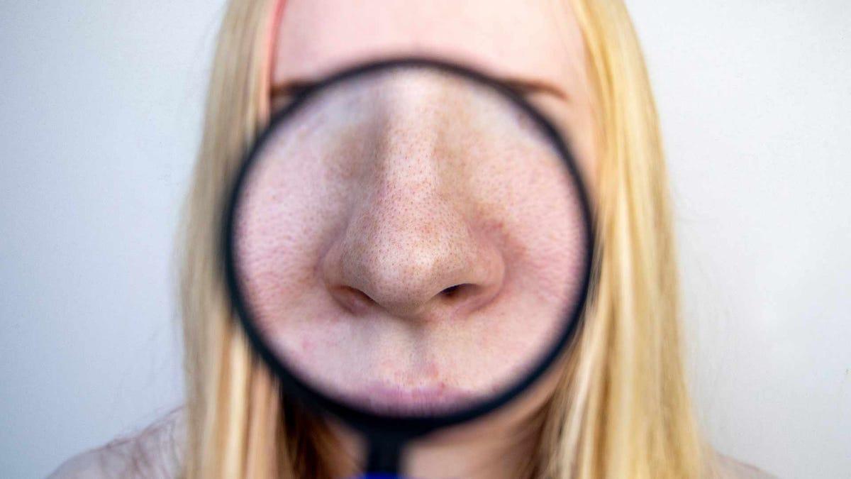 The pores of a woman's nose, seen through a magnifying glass.