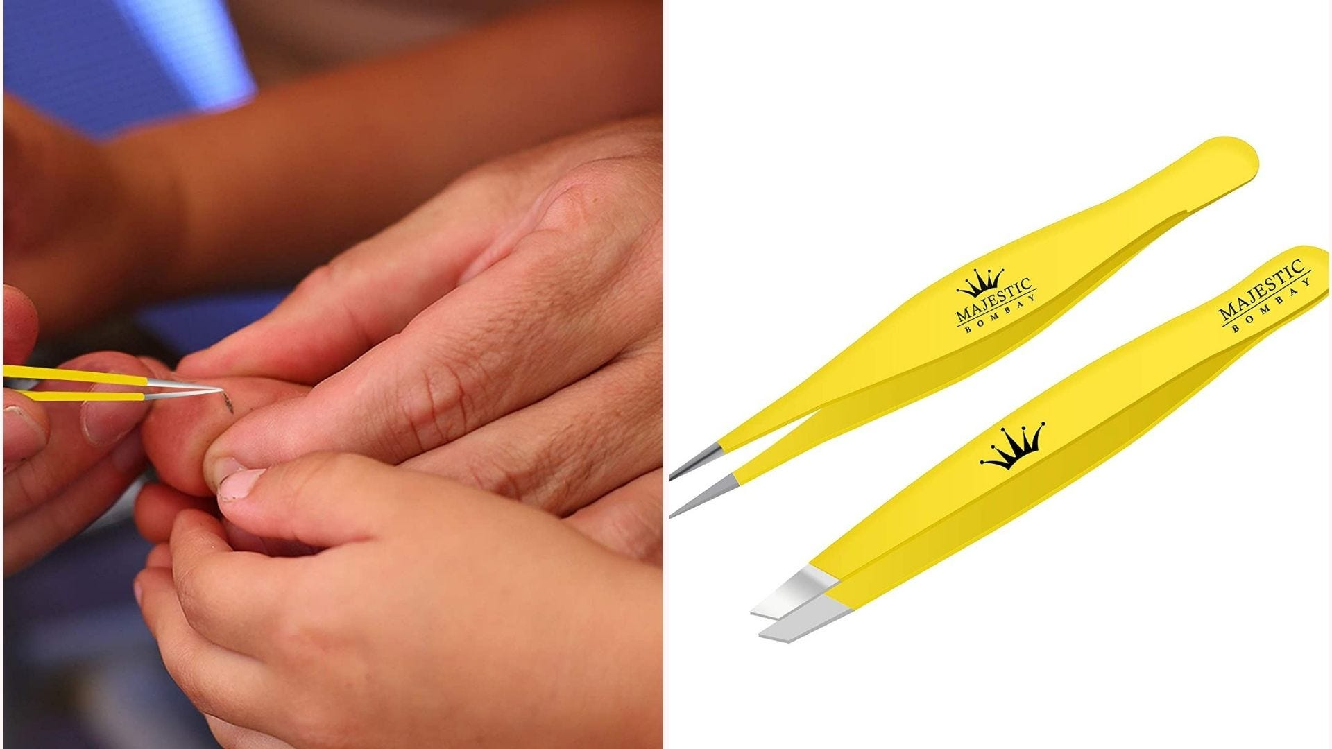 yellow tweezers with silver tips; someone uses a pair to pull a sliver from a toe