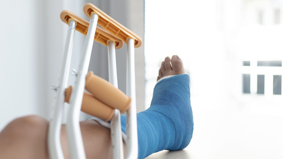 crutches leaning up against an elevated leg with a blue cast on it