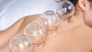 The Best Cupping Sets to Promote Healing