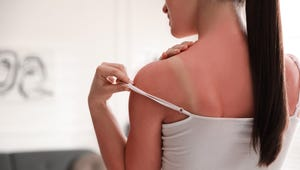 Got a Sunburn? Avoid These Sunburn Treatment Mistakes