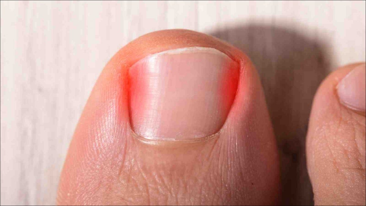 High Angle View Of Sore Toe Nail On Floor